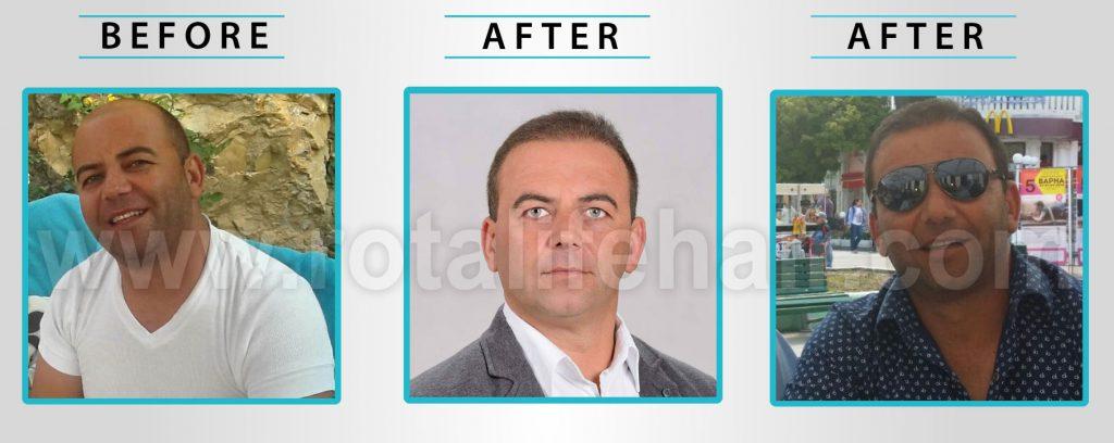 לפני ואחרי 12